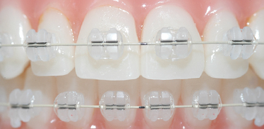 Best Dentist In Hyderabad Orthodontics