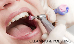 Cleaning & Polishing Of Teeth