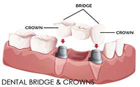 Dental Bridge and Crown