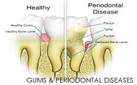 Gums & Periodontal Diseases