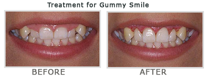 Best Dental Clinic In Hyderabad Treatment For